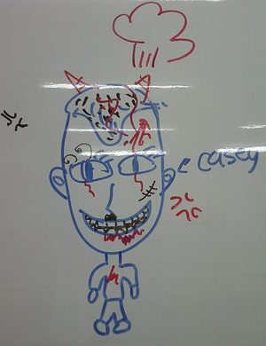 Casey Freeman organs drawing on a whiteboard