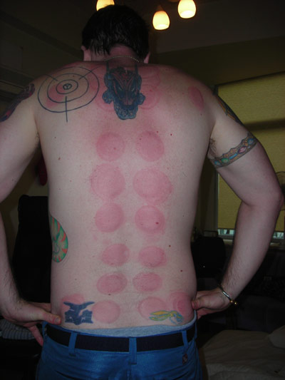 KC shows off his back with suction cup red marks