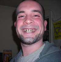 Casey with a gold grill on his teeth