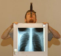 Man with sword down throat getting xray
