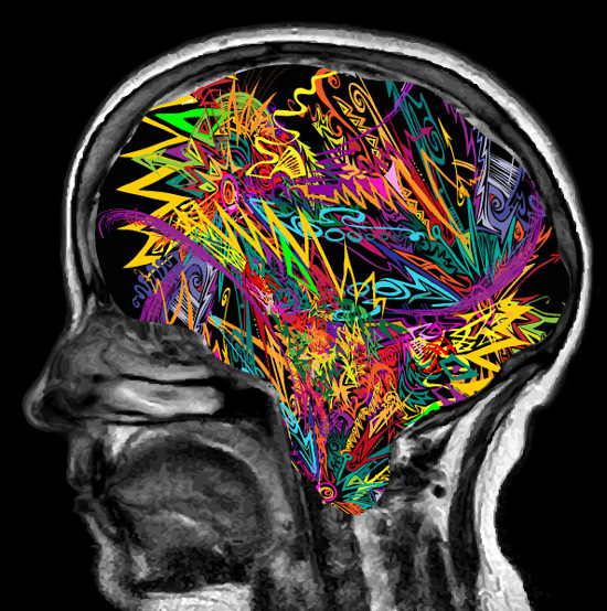 Explosive brain colors